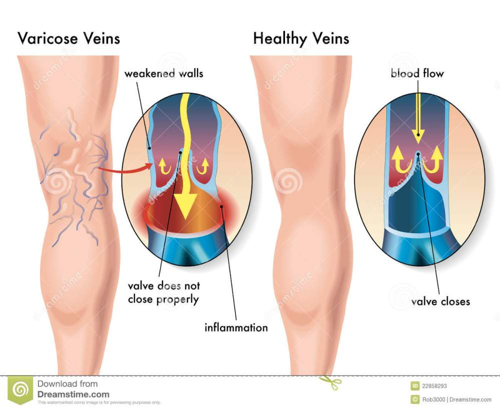 medium resolution of medical illustration of the effects of the varicose veins