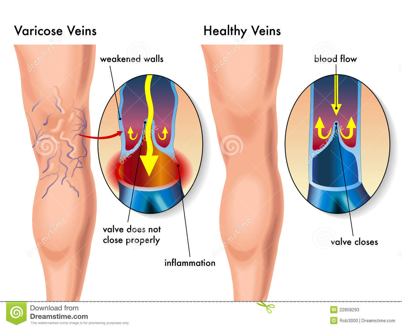 hight resolution of medical illustration of the effects of the varicose veins