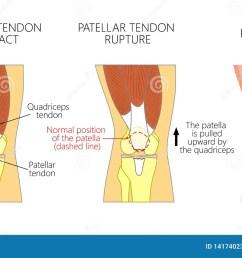 patellar tendon stock illustrations 92 patellar tendon stock illustrations vectors clipart dreamstime [ 1600 x 1003 Pixel ]