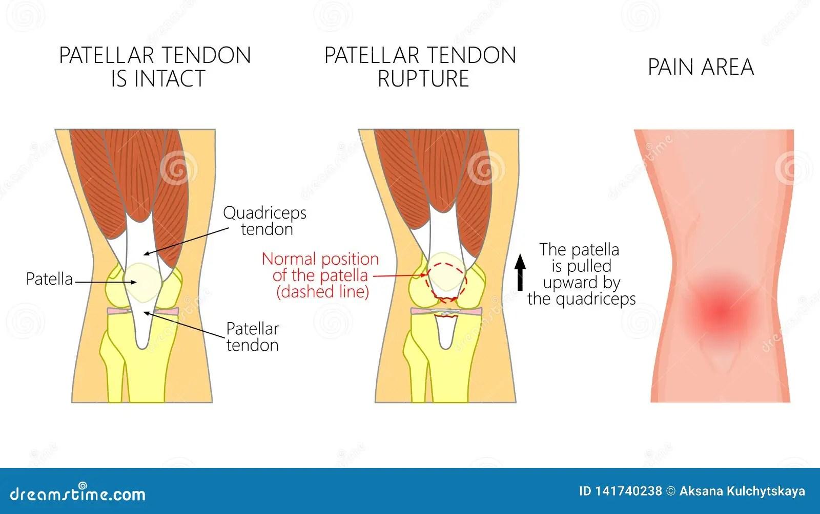 hight resolution of patellar tendon stock illustrations 92 patellar tendon stock illustrations vectors clipart dreamstime