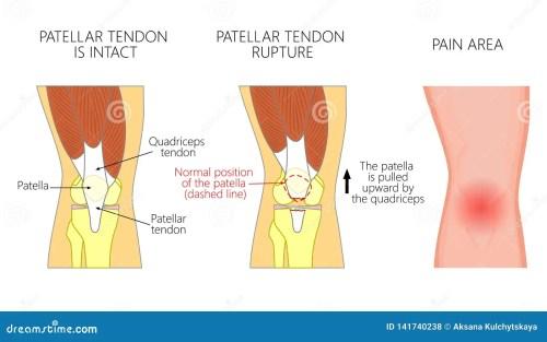 small resolution of patellar tendon stock illustrations 92 patellar tendon stock illustrations vectors clipart dreamstime