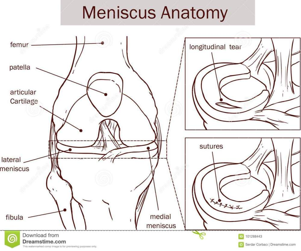 medium resolution of vector illustration of a meniscus tear and surgery