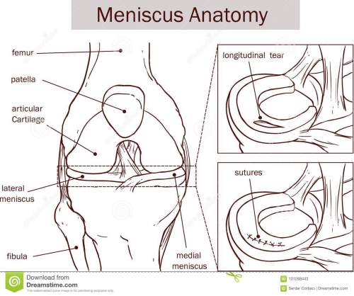 small resolution of vector illustration of a meniscus tear and surgery
