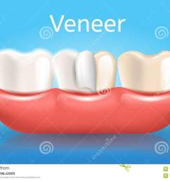 veneer realistic vector medical dentistry poster with thin composite laminate protective layer on human tooth in gums 3d illustration  [ 1300 x 945 Pixel ]