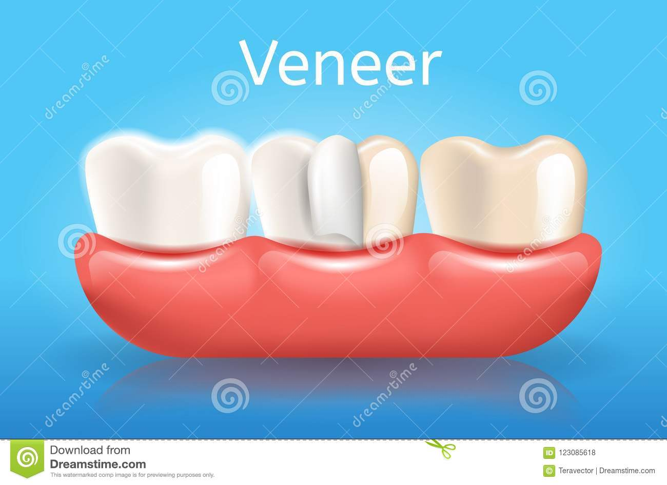 hight resolution of veneer realistic vector medical dentistry poster with thin composite laminate protective layer on human tooth in gums 3d illustration