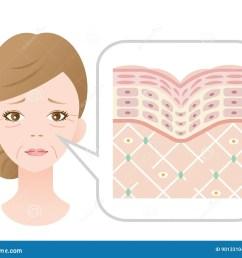 diagram of old skin showing the collagen framework is broken and wrinkles appears  [ 1300 x 1107 Pixel ]