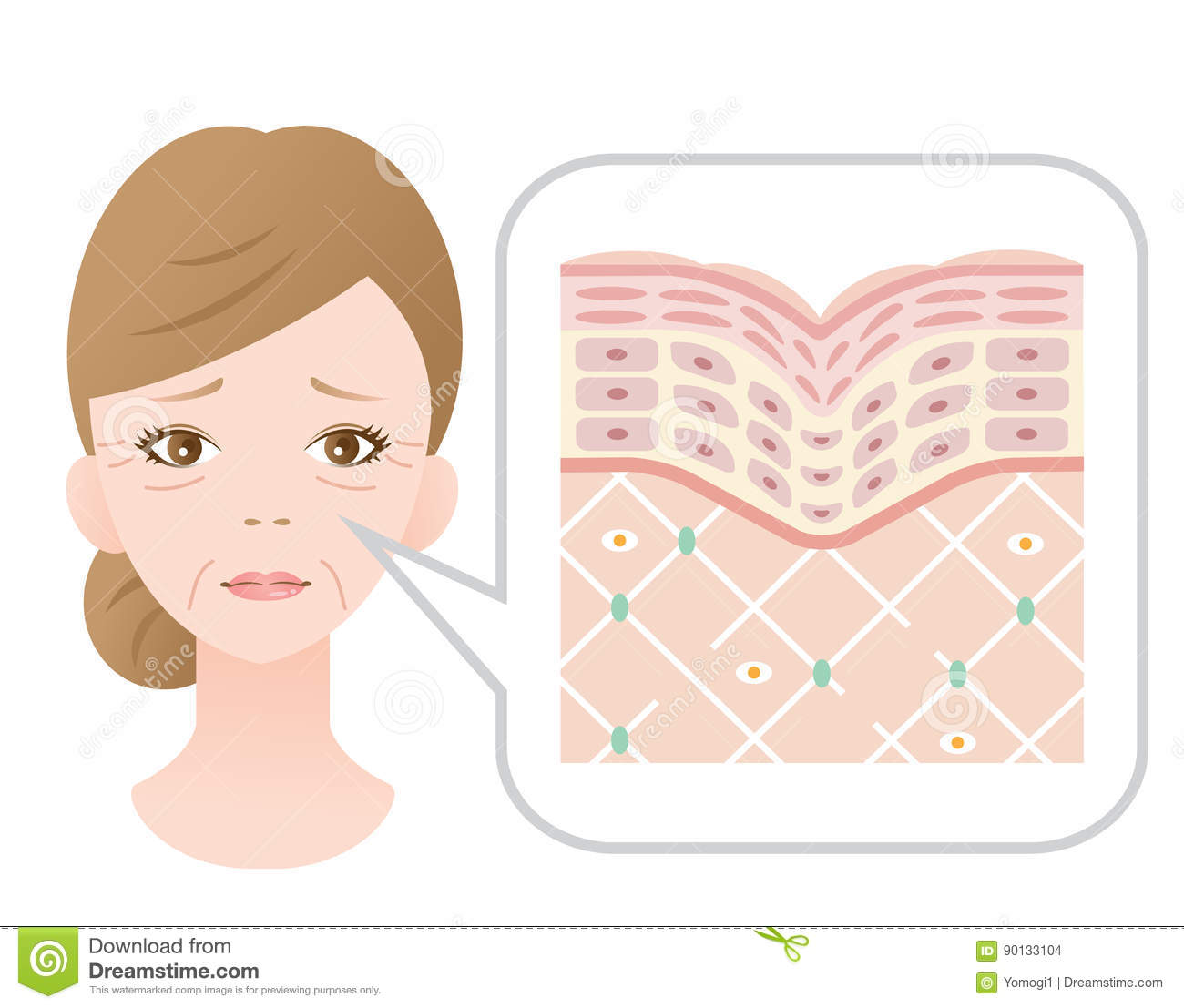 hight resolution of diagram of old skin showing the collagen framework is broken and wrinkles appears