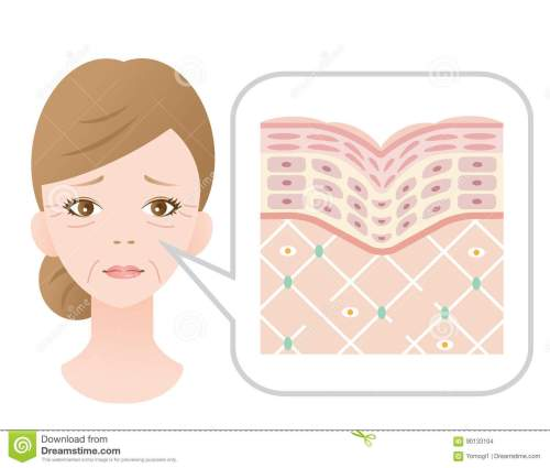small resolution of diagram of old skin showing the collagen framework is broken and wrinkles appears