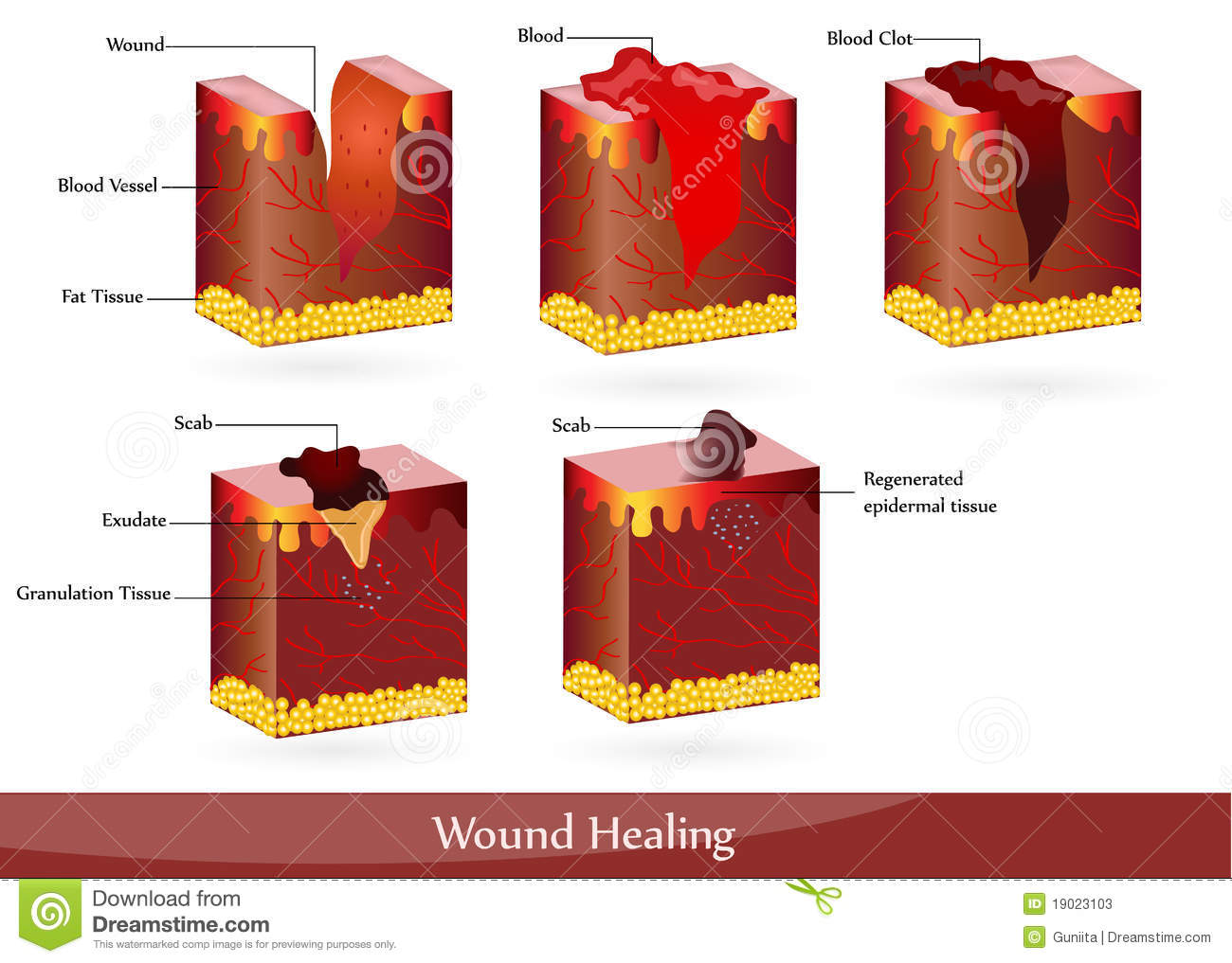 hight resolution of the process of wound healing illustration showing skin after injury appears blood then blood clot then scab