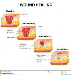phases of the wound healing process hemostasis inflammatory proliferative maturation and remodeling phase [ 1300 x 1231 Pixel ]
