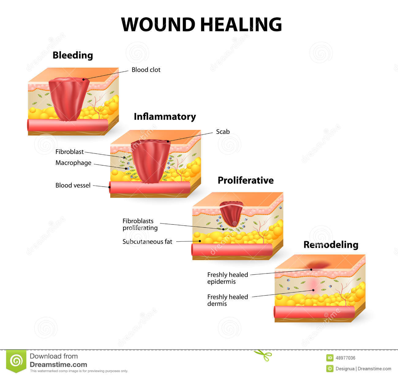 hight resolution of phases of the wound healing process hemostasis inflammatory proliferative maturation and remodeling phase
