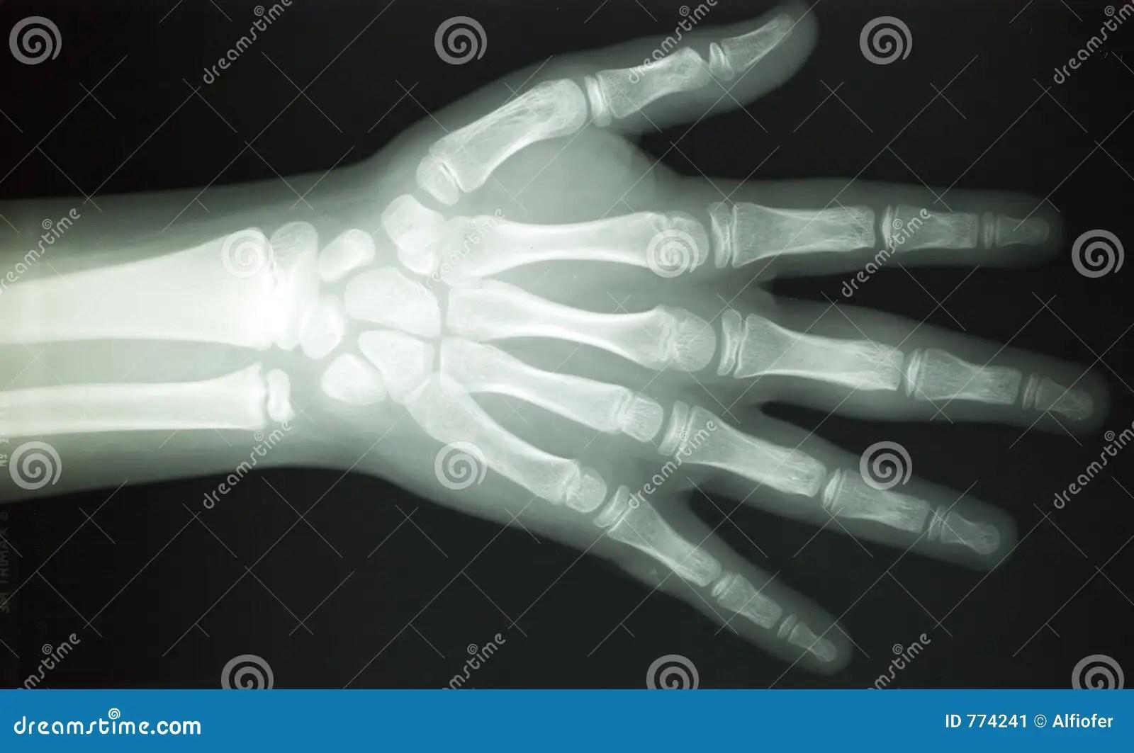 X Ray Body Parts Stock Image