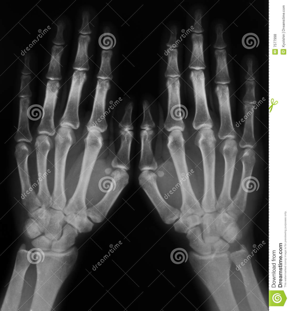 X Ray Of Hands Stock Photo Image Of Medical Scan