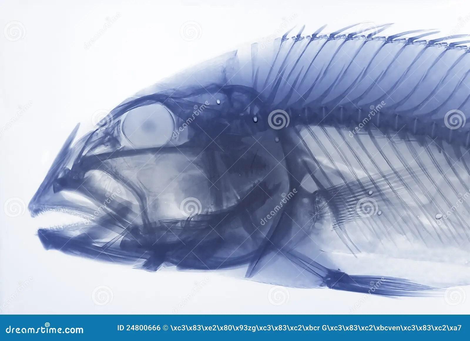 Xray Of A Fish Stock Photo Image Of Radiography Bone