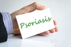 Psoriasis and Psoriatic arthristis