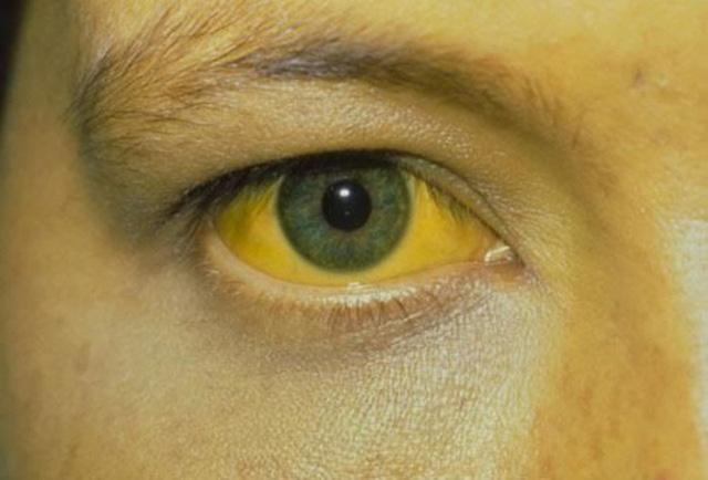 Nguyên nhân gây vàng da