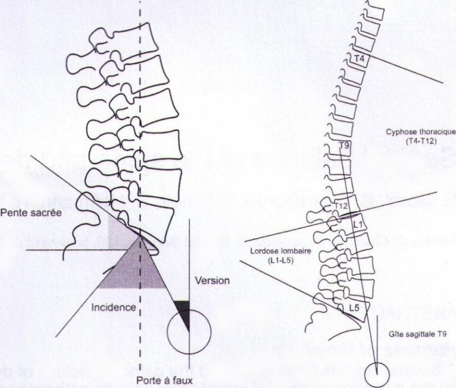 Schémas de la cyphose thoracique et de la lordose lombaire