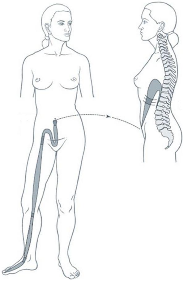 Illustration du méridien tendino-musculaire de la rate