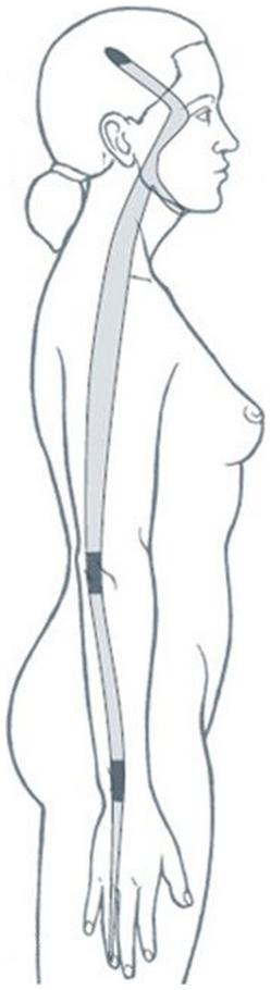 Illustration du méridien tendino-musculaire du triple réchauffeur