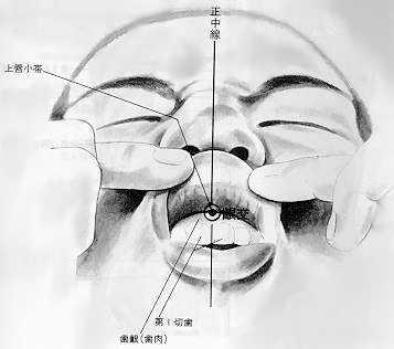 Croisement de la gencive, 龈交 yínjiāo, est le vingt huitième point du vaisseau gouverneur.