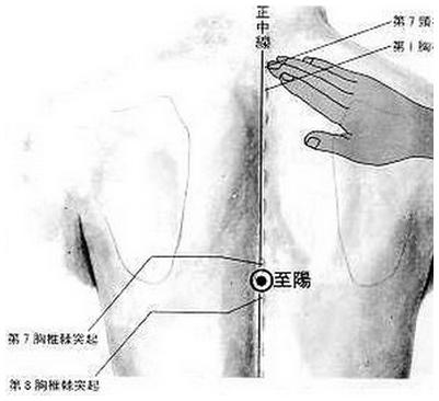 Arrive au yang, 至陽 zhìyáng, est le neuvième point du vaisseau gouverneur