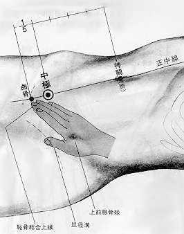 Centre du faîte, 中极 zhōng jí est le troisième point du vaisseau conception.