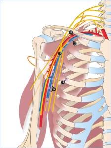 11 artère axillaire, 12 veine axillaire, 13 plexus brachial, 14 lymphonoeuds axillaires
