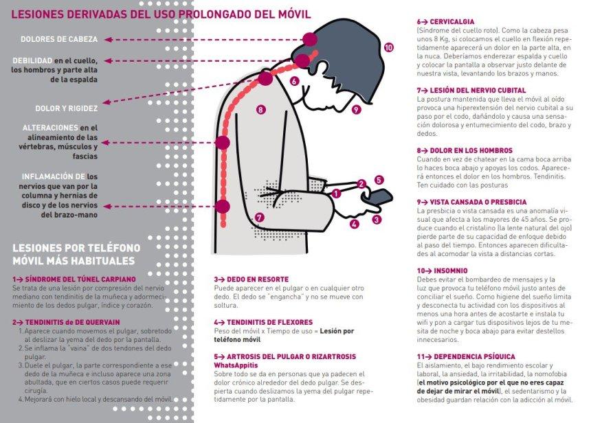 Lesiones derivadas por uso prolongado del móvil
