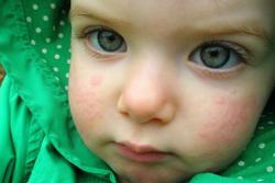 Почему аллергия усиливается к вечеру