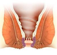 Prostatitis a fogantatáshoz Prostatitis és endometriózis