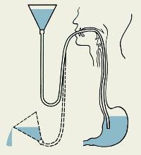 Мидокалм мовалис мильгамма комплексное лечение схема. Мовалис, Мидокалм и Мильгамма: что лучше, сравнение. Показания к применению Мидокалма