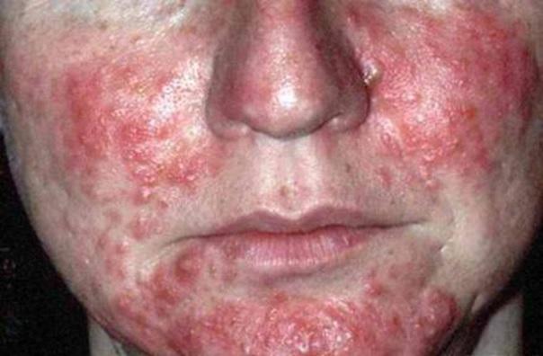 Helicobacter tünetei arcon