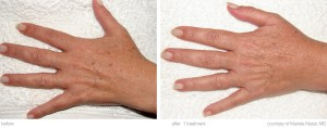 M22hands/sun damageBEFORE / AFTER 1x