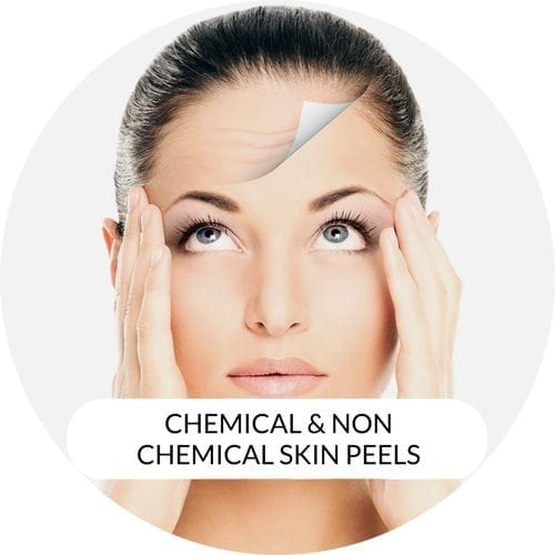 Chemical Peel (TCA & Salicylic Acid Peel)