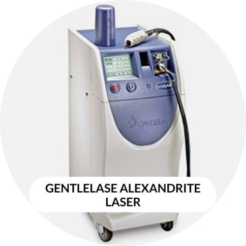 alexandrite laser hair removal london