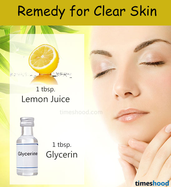 Lemon juice and glycerin for clear skin tone. Skin whitening tips. How to get clear skin overnight. Tips to get clear skin overnight. Clear skin tips. Remedy for dry skin. Home remedies for fair skin. Home remedies for clear face.