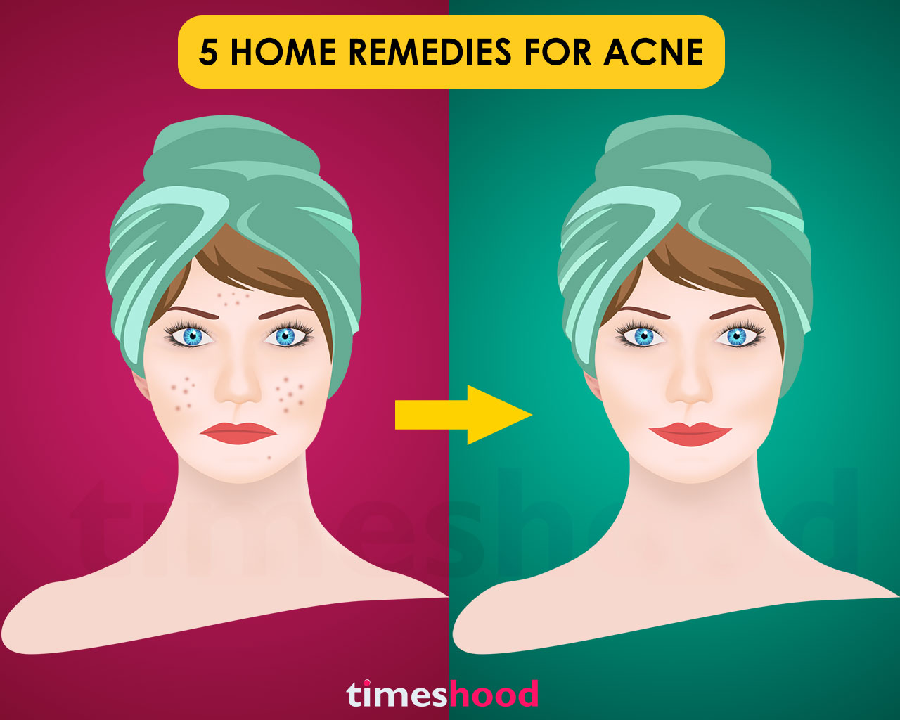Top 5 Home Remedies To Get Rid Of Acne Fast Timeshood