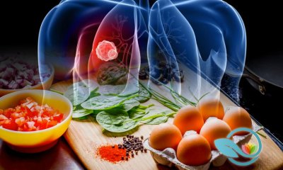 Keto Diet May Improve Results of Cancer Treatment, Due to Absence of Glucose