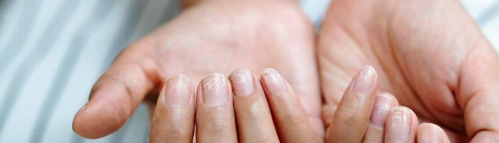 COVID nails could be a sign that you have had COVID