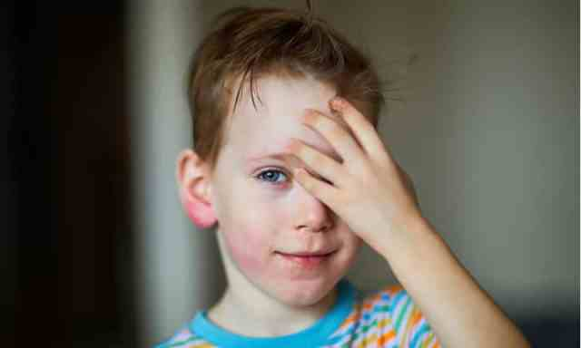Why Hives Occur in Children