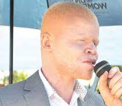APAM CALLS FOR TRANSPARENCY FOR FUNDS FOR ALBINO WELFARE