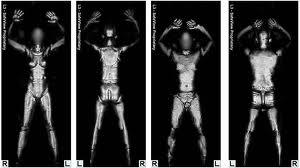 full body x-ray scan for the tsa.