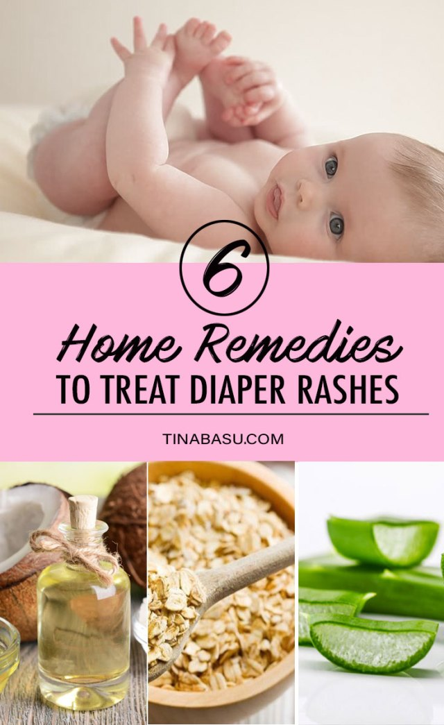 Home Remedies to Treat Diaper Rash