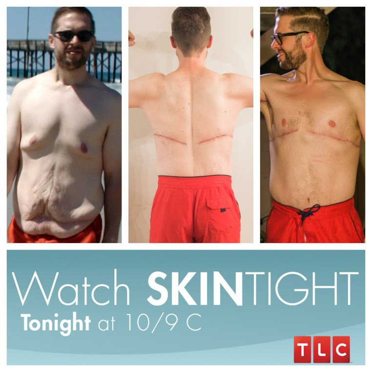 My Loose Skin Removal Surgery As Seen on TLC's Skin Tight
