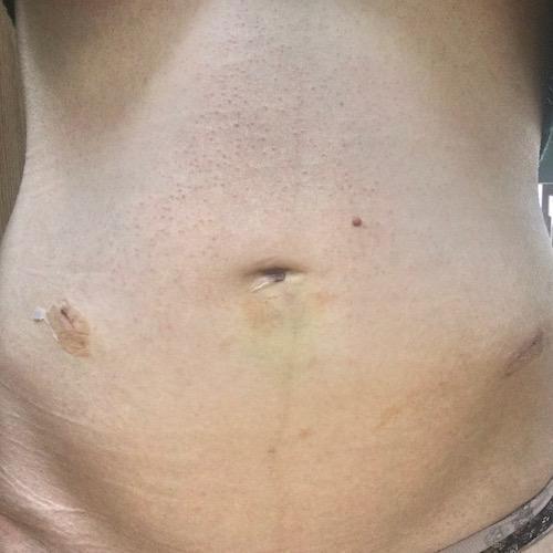 Ovarian Laparoscopy Scars