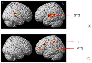 fMRI of Brain or Tinnitus sufferer during ADT
