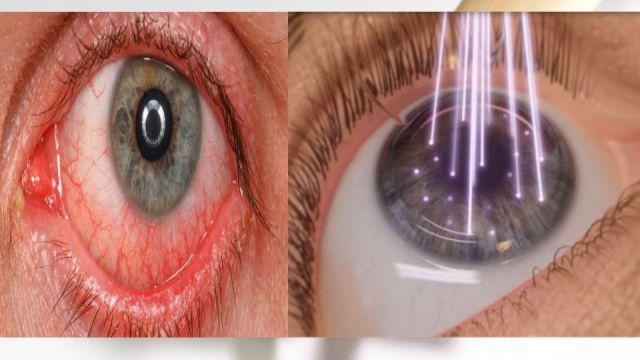 tratamiento de lasik