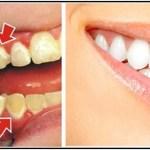 Légy a saját fogorvosod! Így távolítsd el a plakkot a fogakról, mindössze 5 perc alatt!