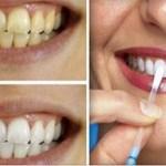 A fogorvosok eltitkolnák, de mi felfedjük a fehér fogak titkát!