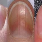 10 árulkodó jel, amit a körmöd elárul az egészségedről!